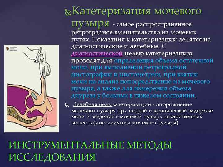 Катетеризация мочевого пузыря - самое распространенное ретроградное вмешательство на мочевых путях. Показания к катетеризации