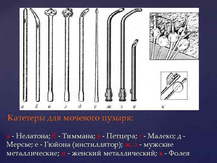 Катетеры для мочевого пузыря: а - Нелатона; б - Тиммана; в - Петцера; г