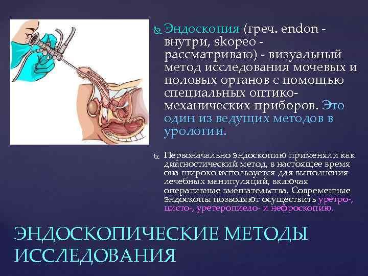 Эндоскопия (греч. endon внутри, skopeo рассматриваю) - визуальный метод исследования мочевых и половых