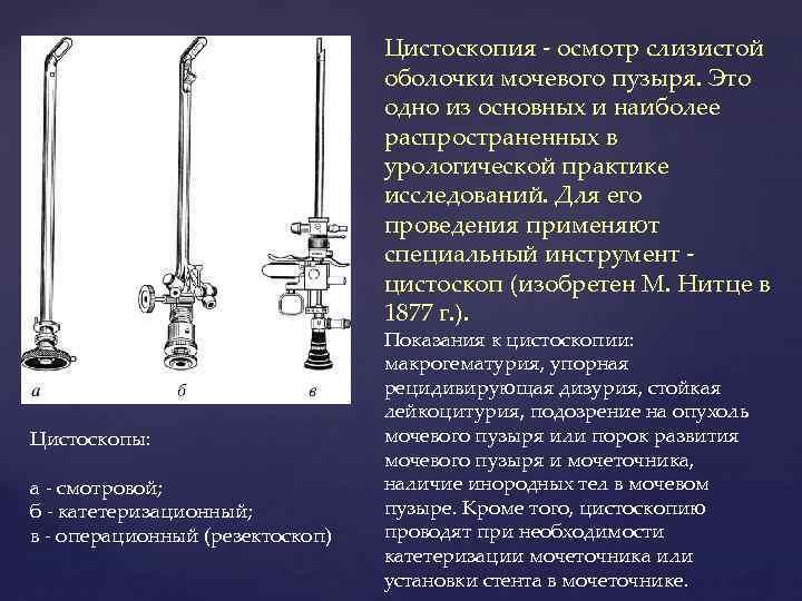 Цистоскопия - осмотр слизистой оболочки мочевого пузыря. Это одно из основных и наиболее распространенных