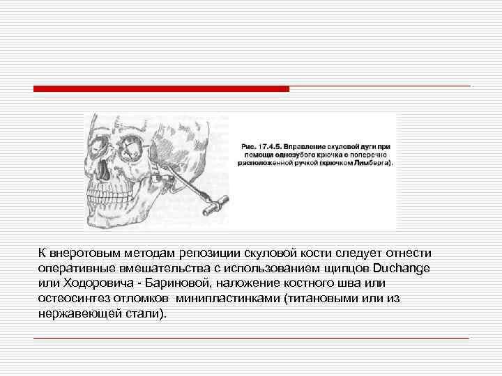 К внеротовым методам репозиции скуловой кости следует отнести оперативные вмешательства с использованием щипцов Duchange