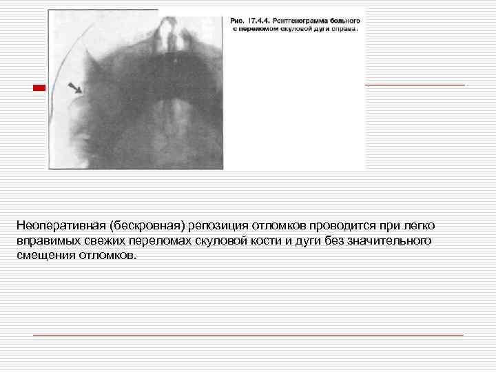Неоперативная (бескровная) репозиция отломков проводится при легко вправимых свежих переломах скуловой кости и дуги