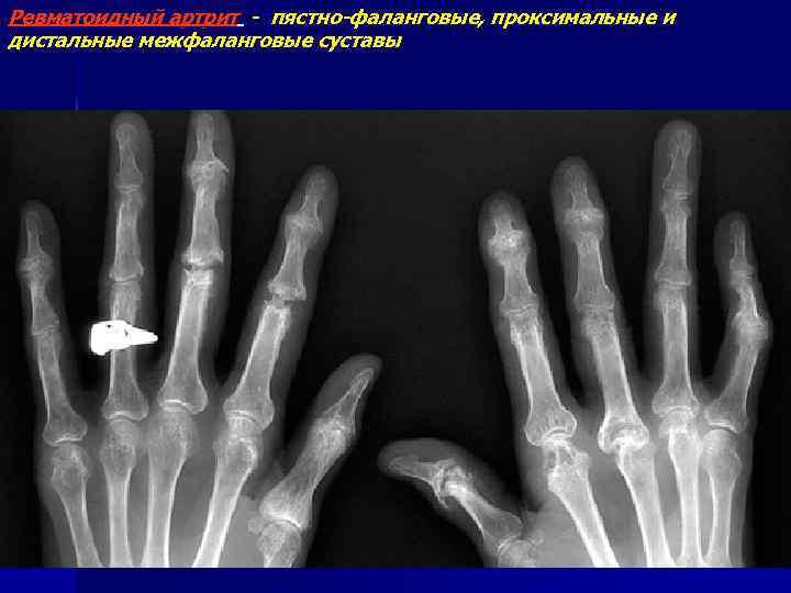 Ревматоидный артрит - пястно-фаланговые, проксимальные и дистальные межфаланговые суставы