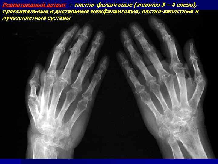 Ревматоидный артрит - пястно-фаланговые (анкилоз 3 – 4 слева), проксимальные и дистальные межфаланговые, пястно-запястные
