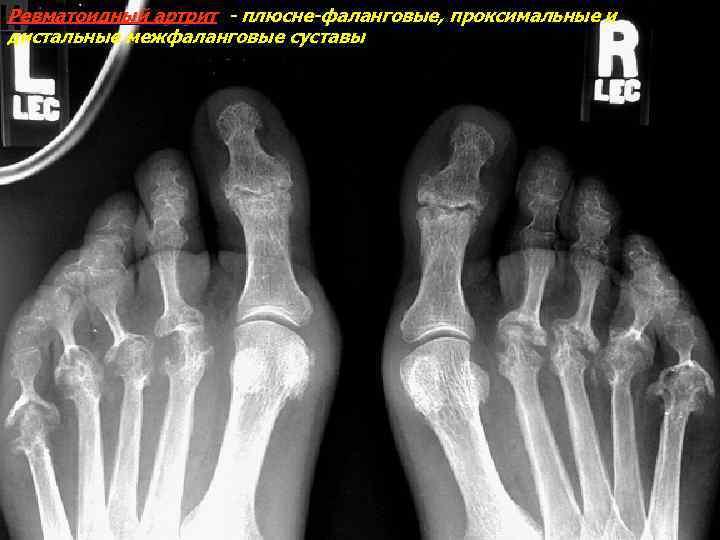 Ревматоидный артрит - плюсне-фаланговые, проксимальные и дистальные межфаланговые суставы