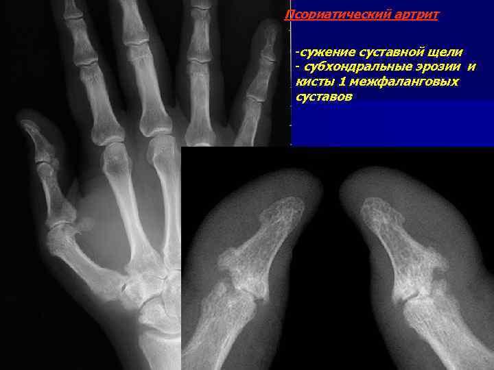 Псориатический артрит -сужение суставной щели - субхондральные эрозии и кисты 1 межфаланговых суставов
