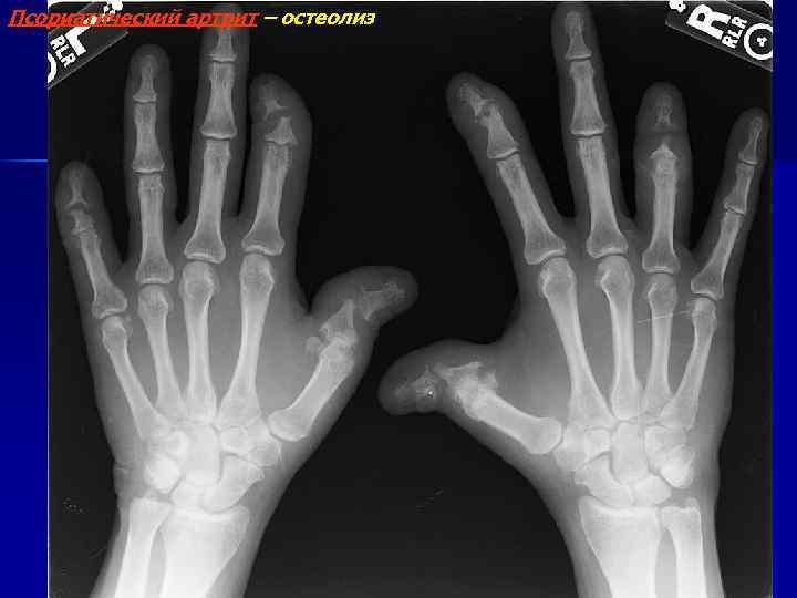 Псориатический артрит – остеолиз