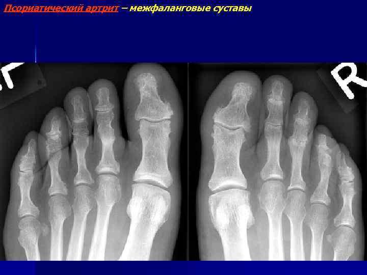 Псориатический артрит – межфаланговые суставы