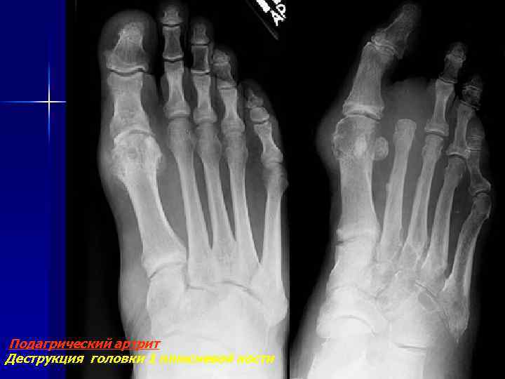 Подагрический артрит Деструкция головки 1 плюсневой кости
