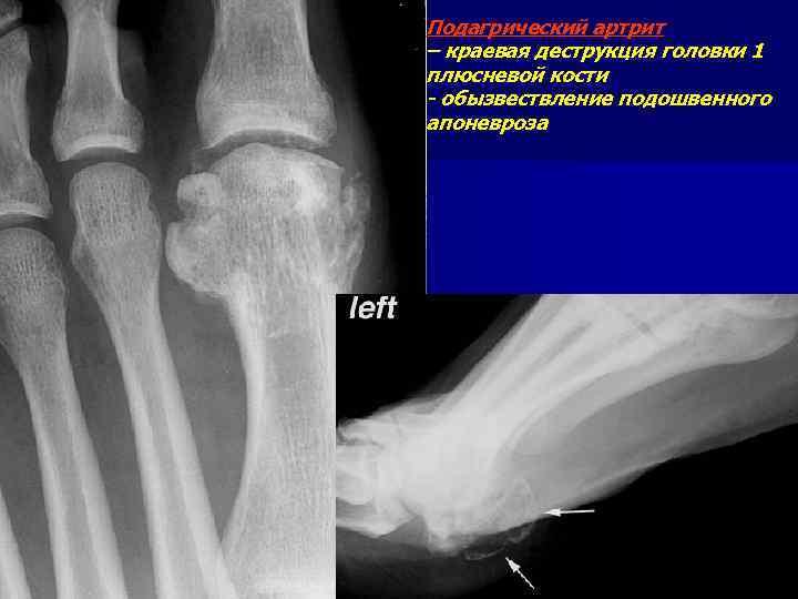 Подагрический артрит – краевая деструкция головки 1 плюсневой кости - обызвествление подошвенного апоневроза