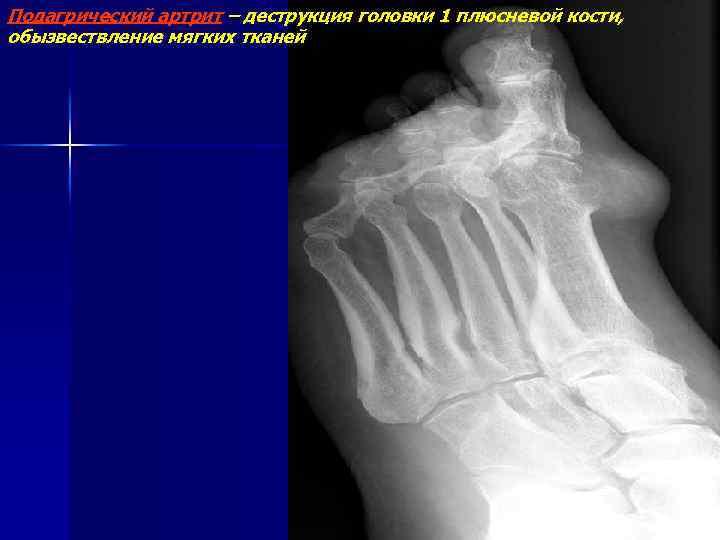 Подагрический артрит – деструкция головки 1 плюсневой кости, обызвествление мягких тканей