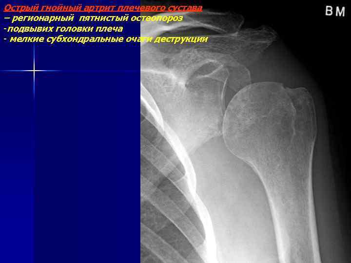 Острый гнойный артрит плечевого сустава – регионарный пятнистый остеопороз -подвывих головки плеча - мелкие