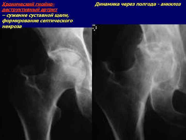 Хронический гнойнодеструктивный артрит – сужение суставной щели, формирование септического некроза Динамика через полгода -