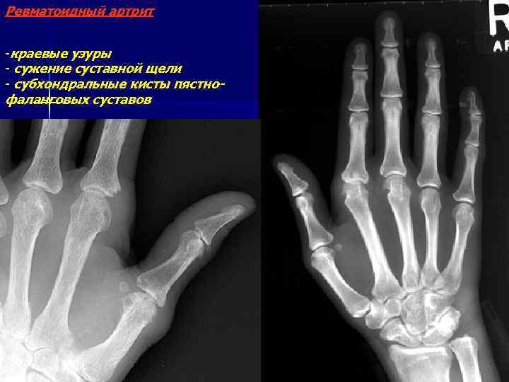Ревматоидный артрит -краевые узуры - сужение суставной щели - субхондральные кисты пястнофаланговых суставов