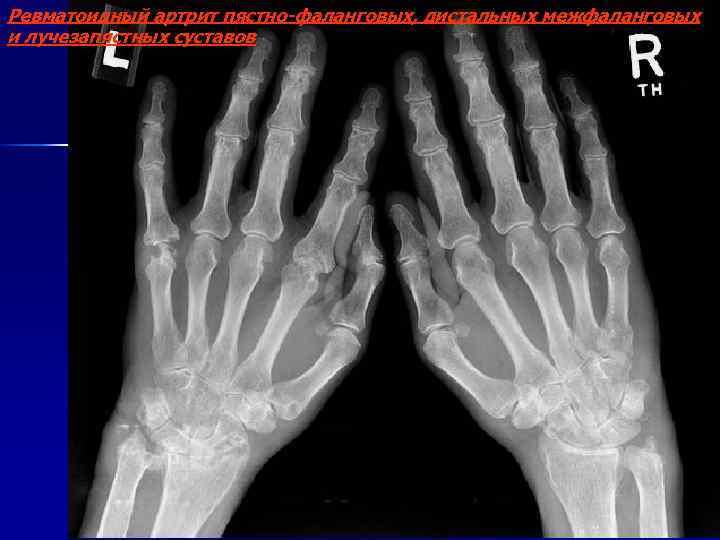Ревматоидный артрит пястно-фаланговых, дистальных межфаланговых и лучезапястных суставов