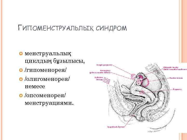 ГИПОМЕНСТРУАЛЬЛЫҚ СИНДРОМ менструальлық циклдың бұзылысы, /гипоменорея/ /олигоменорея/ немесе /опсоменорея/ менструациями.