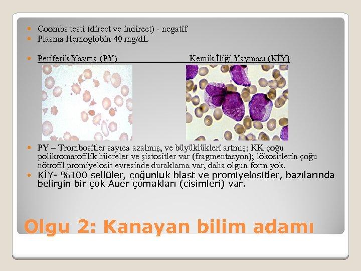 Coombs testi (direct ve indirect) - negatif Plasma Hemoglobin 40 mg/d. L Periferik