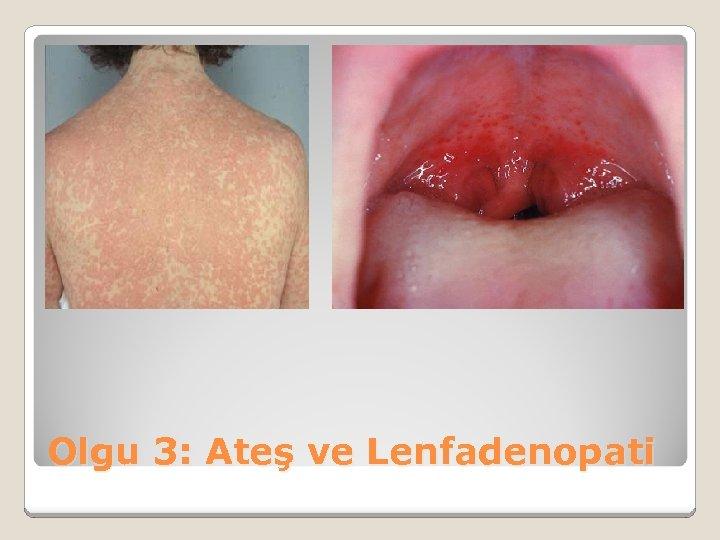 Olgu 3: Ateş ve Lenfadenopati
