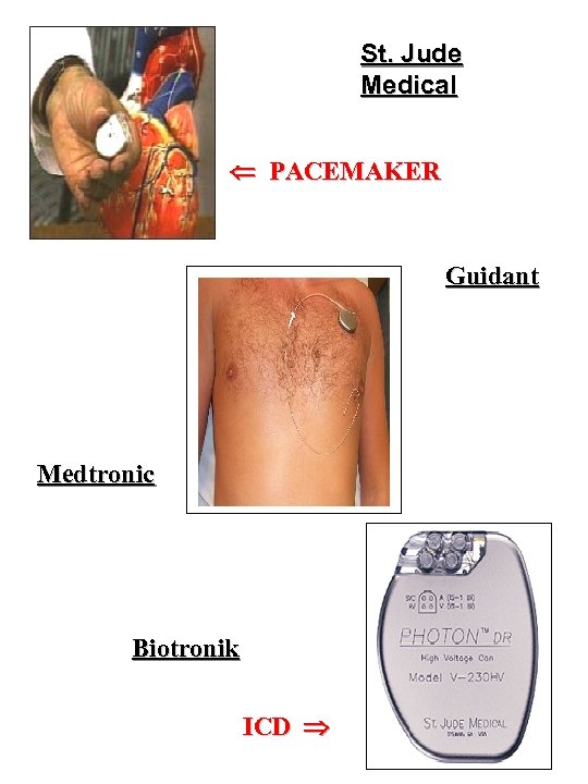 St. Jude Medical PACEMAKER Guidant Medtronic Biotronik ICD