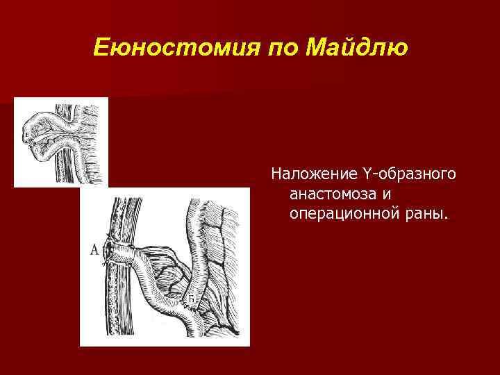 Еюностомия по Майдлю Наложение Y-образного анастомоза и операционной раны.