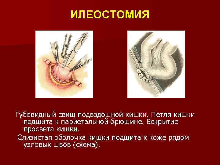 ИЛЕОСТОМИЯ Губовидный свищ подвздошной кишки. Петля кишки подшита к париетальной брюшине. Вскрытие просвета кишки.