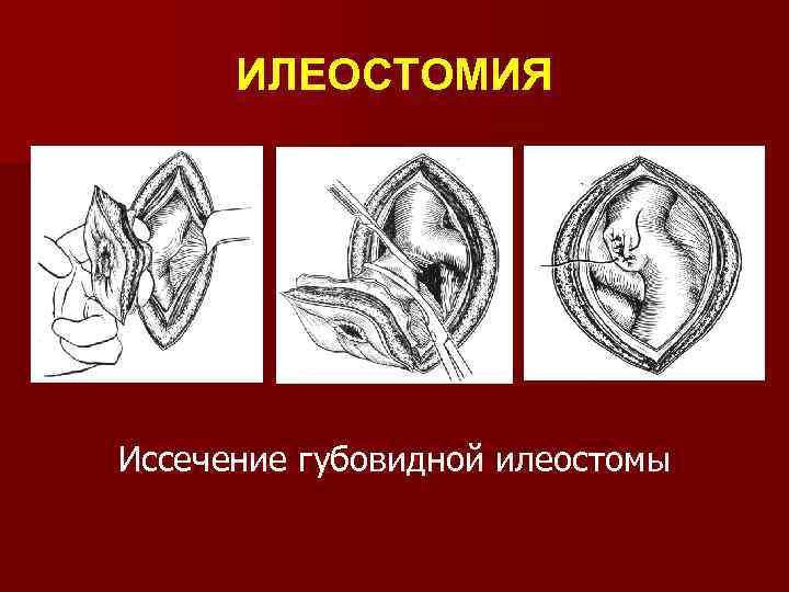 ИЛЕОСТОМИЯ Иссечение губовидной илеостомы