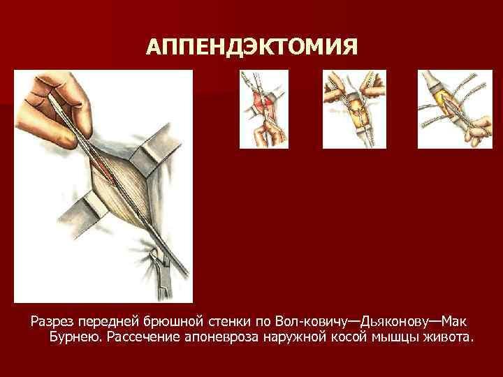 АППЕНДЭКТОМИЯ Разрез передней брюшной стенки по Вол-ковичу—Дьяконову—Мак Бурнею. Рассечение апоневроза наружной косой мышцы живота.