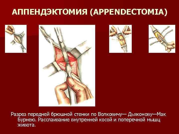 АППЕНДЭКТОМИЯ (APPENDECTOMIA) Разрез передней брюшной стенки по Волковичу— Дьяконову—Мак Бурнею. Расслаивание внутренней косой и