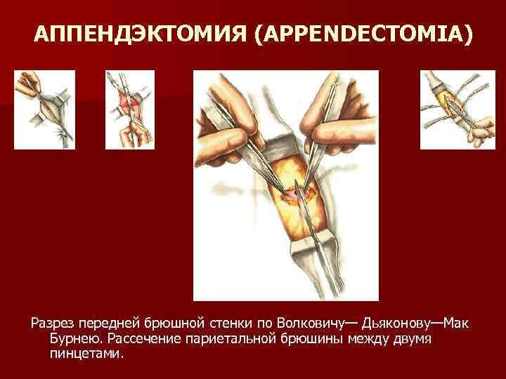 АППЕНДЭКТОМИЯ (APPENDECTOMIA) Разрез передней брюшной стенки по Волковичу— Дьяконову—Мак Бурнею. Рассечение париетальной брюшины между