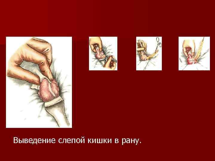 Выведение слепой кишки в рану.