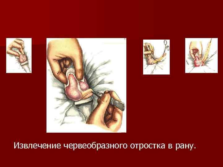 Извлечение червеобразного отростка в рану.
