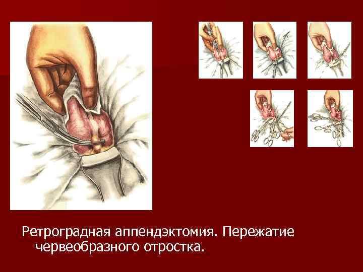 Ретроградная аппендэктомия. Пережатие червеобразного отростка.