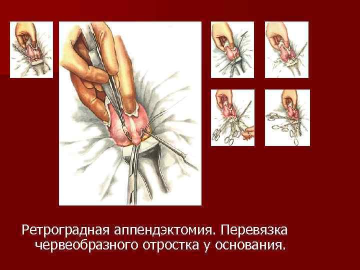Ретроградная аппендэктомия. Перевязка червеобразного отростка у основания.
