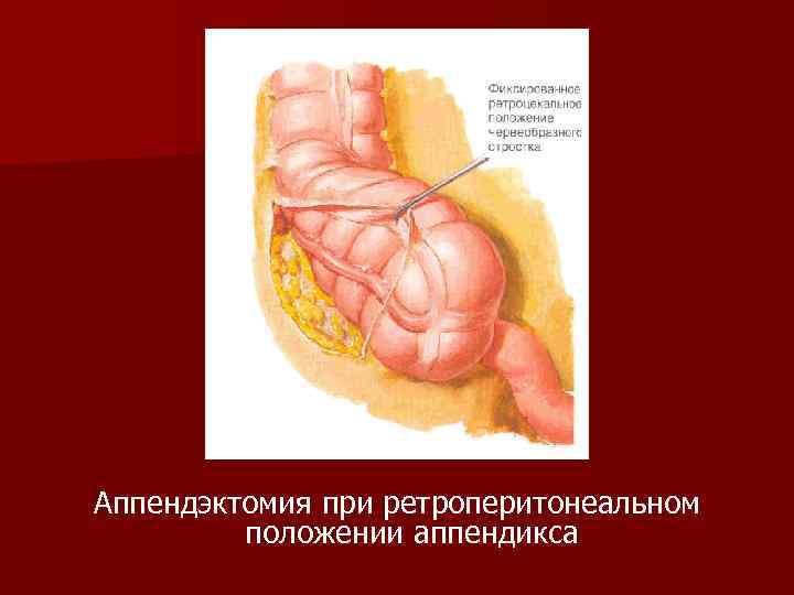 Аппендэктомия при ретроперитонеальном положении аппендикса