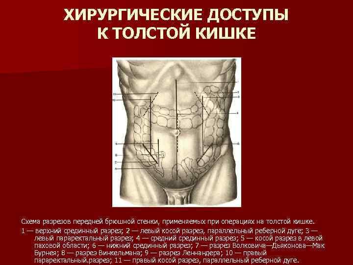 ХИРУРГИЧЕСКИЕ ДОСТУПЫ К ТОЛСТОЙ КИШКЕ Схема разрезов передней брюшной стенки, применяемых при операциях на