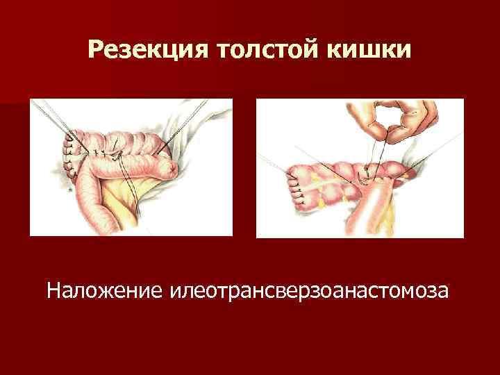 Резекция толстой кишки Наложение илеотрансверзоанастомоза