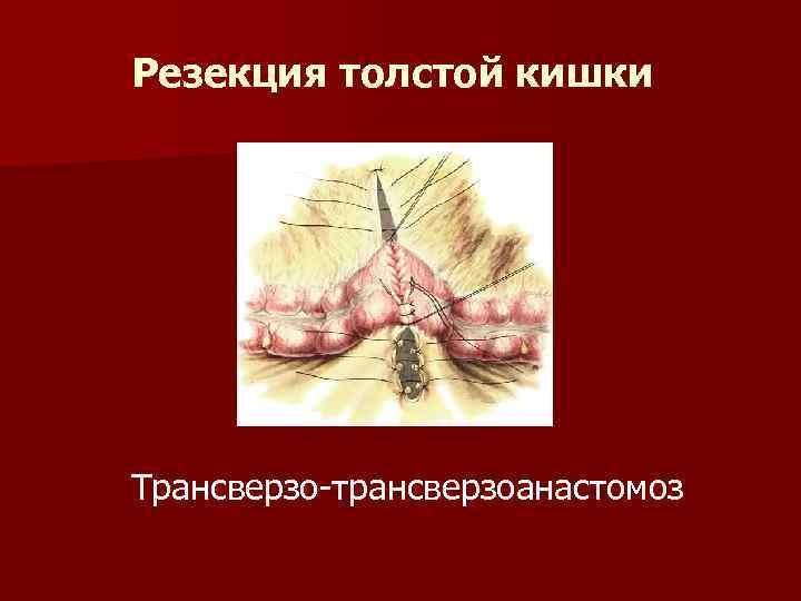 Резекция толстой кишки Трансверзо-трансверзоанастомоз