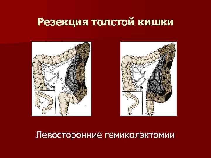 Резекция толстой кишки Левосторонние гемиколэктомии