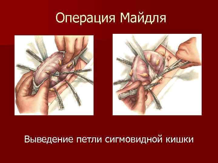 Операция Майдля Выведение петли сигмовидной кишки