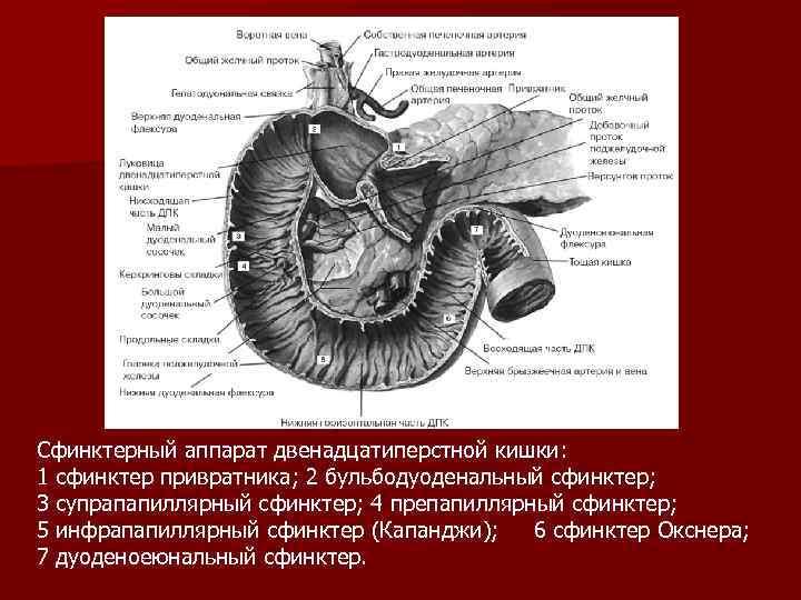 Сфинктерный аппарат двенадцатиперстной кишки: 1 сфинктер привратника; 2 бульбодуоденальный сфинктер; 3 супрапапиллярный сфинктер; 4