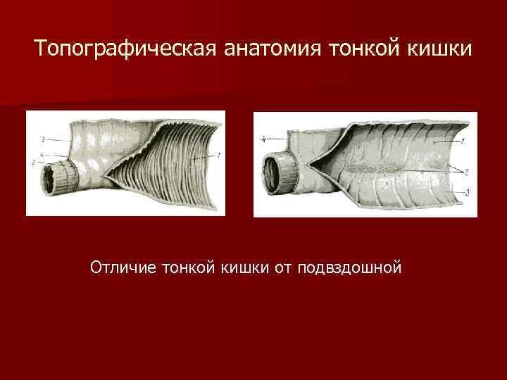 Топографическая анатомия тонкой кишки Отличие тонкой кишки от подвздошной