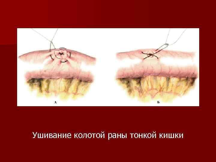 Ушивание колотой раны тонкой кишки