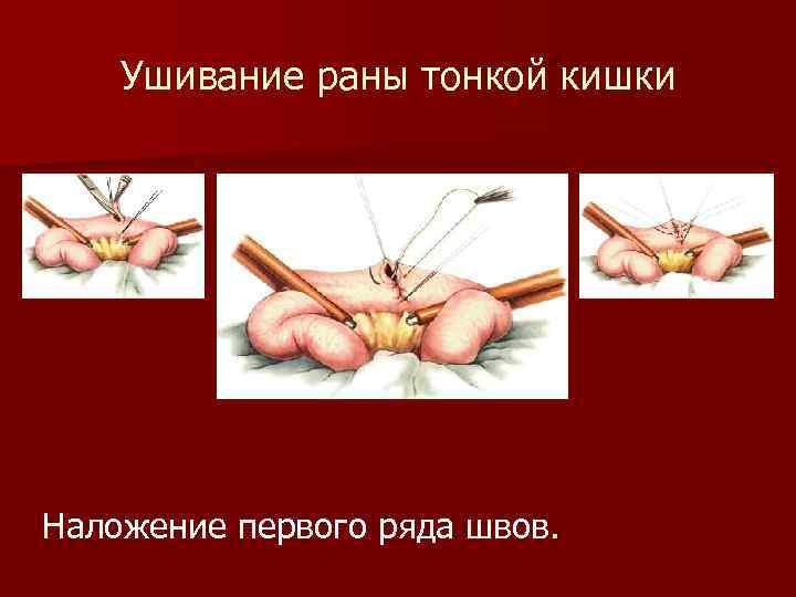 Ушивание раны тонкой кишки Наложение первого ряда швов.