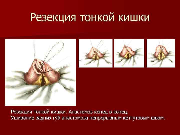Резекция тонкой кишки. Анастомоз конец в конец. Ушивание задних губ анастомоза непрерывным кетгутовым швом.