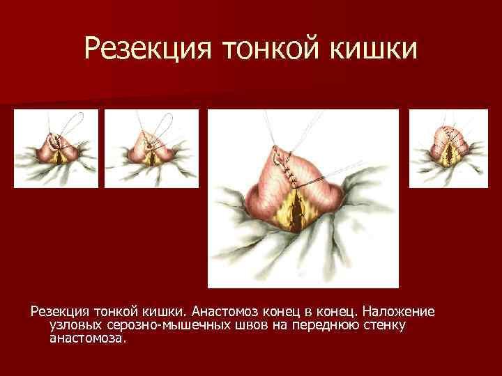 Резекция тонкой кишки. Анастомоз конец в конец. Наложение узловых серозно-мышечных швов на переднюю стенку