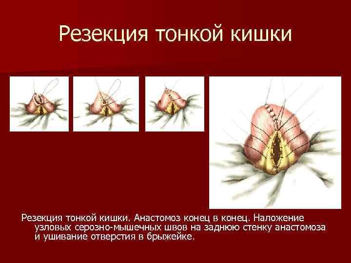 Резекция тонкой кишки. Анастомоз конец в конец. Наложение узловых серозно-мышечных швов на заднюю стенку