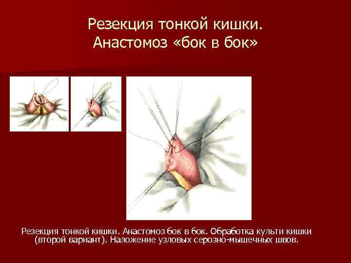 Резекция тонкой кишки. Анастомоз «бок в бок» Резекция тонкой кишки. Анастомоз бок в бок.