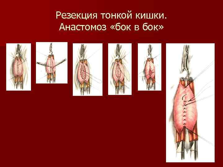 Резекция тонкой кишки. Анастомоз «бок в бок»