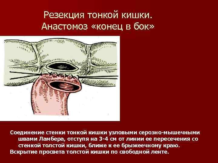 Резекция тонкой кишки. Анастомоз «конец в бок» Соединение стенки тонкой кишки узловыми серозно-мышечными швами