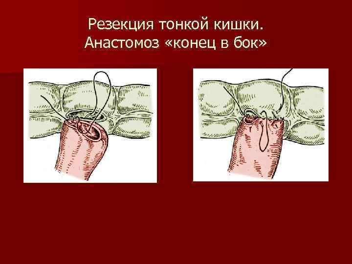 Резекция тонкой кишки. Анастомоз «конец в бок»